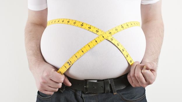 Obesidad; La Pandemia del siglo XXI.