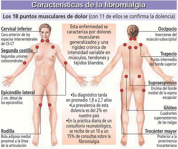 Fibromialgia; La enfermedad del dolor muscular.