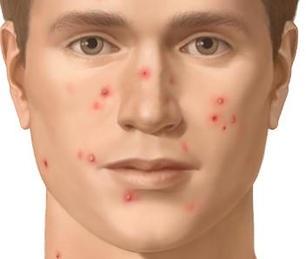 Acné; La enfermedad de la piel más común.